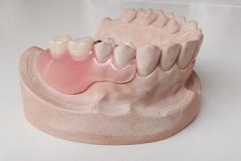 2.自己診療の部分入れ歯