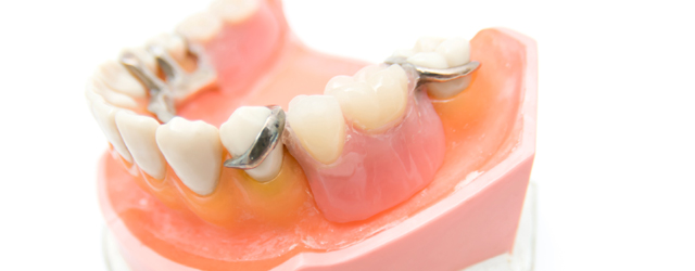 入れ歯について・インプラント治療