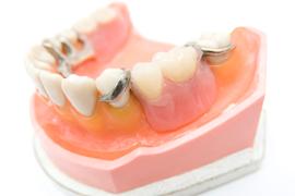 1.保険診療の部分入れ歯